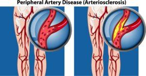 peripherl-artery-disease